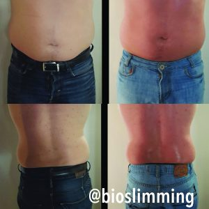 man before and after bioslimming body wrap