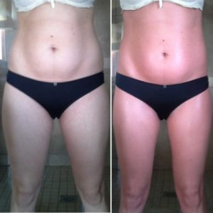 bioslimming body wrap before and after