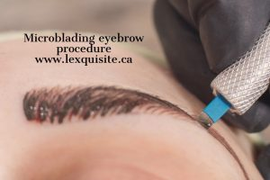 Microblading eyebrow procedure creates fuller eyebrows