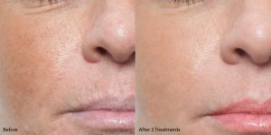 Microneedling face before and after, tightening skin and hyperpigmentation