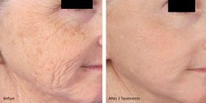 Microneedling to tighten skin